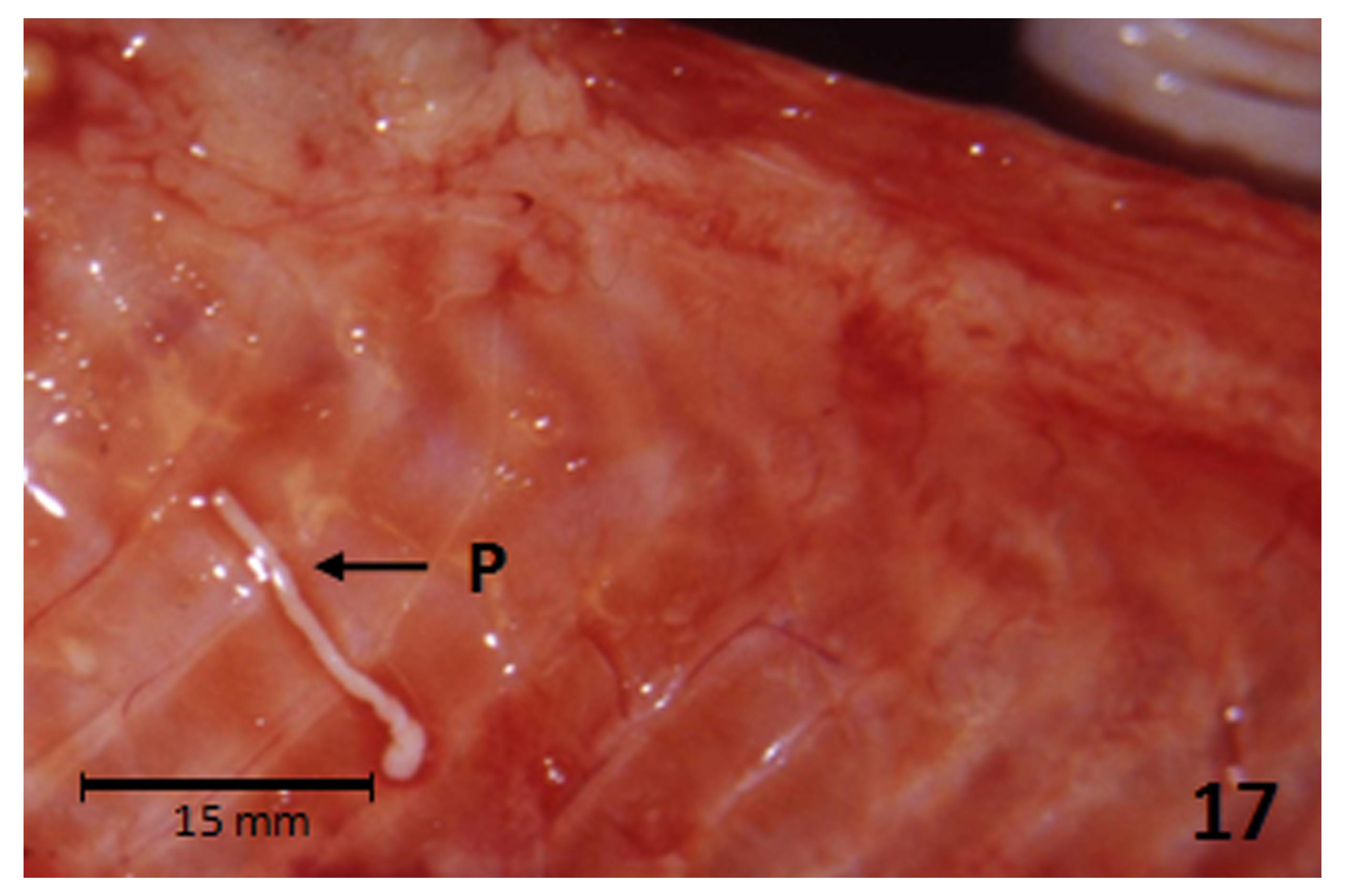 a kórokozóra jellemző diphyllobothriasis paraziták pong joong ho