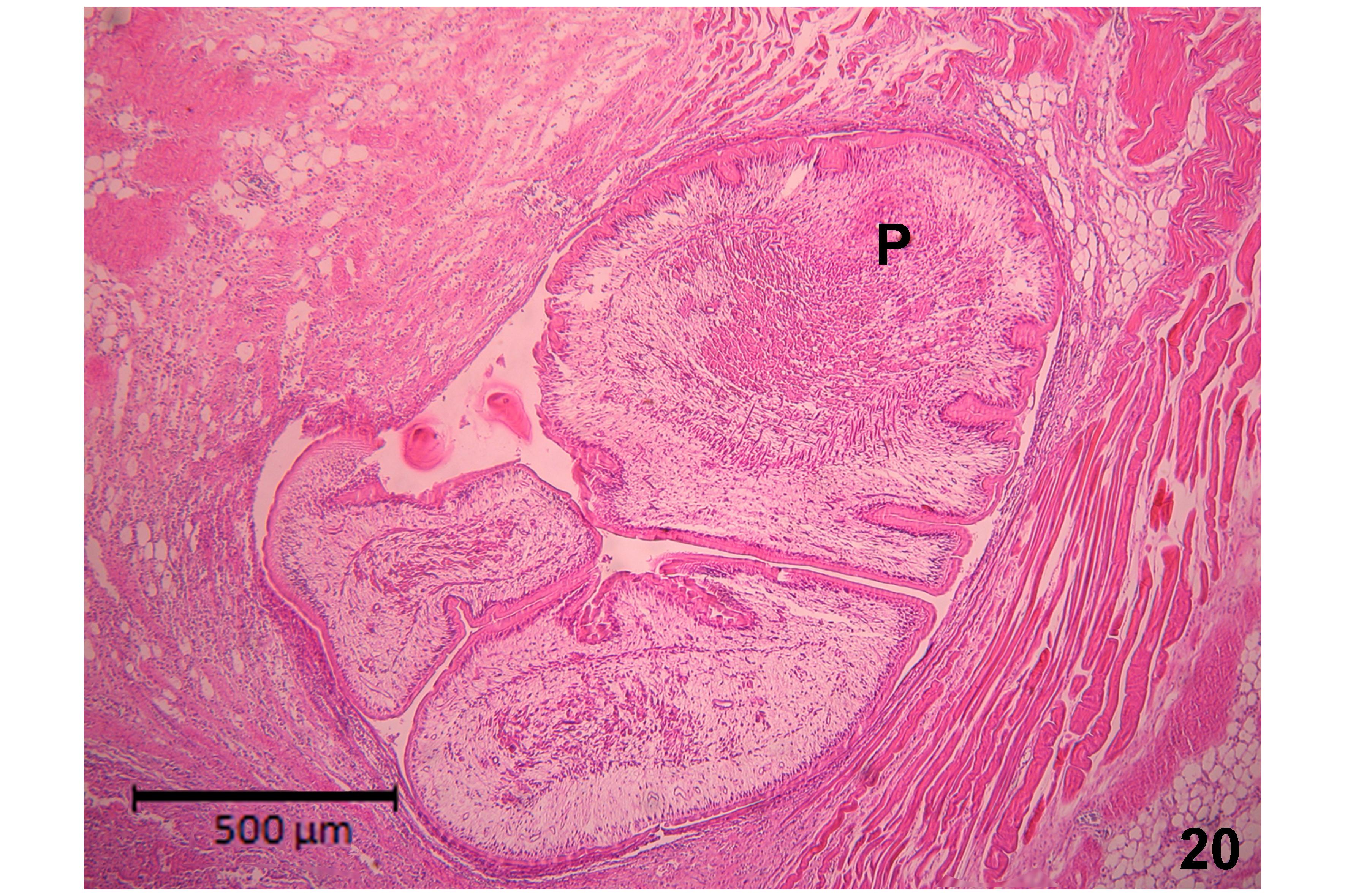 a kórokozóra jellemző diphyllobothriasis parazita salak tisztítása