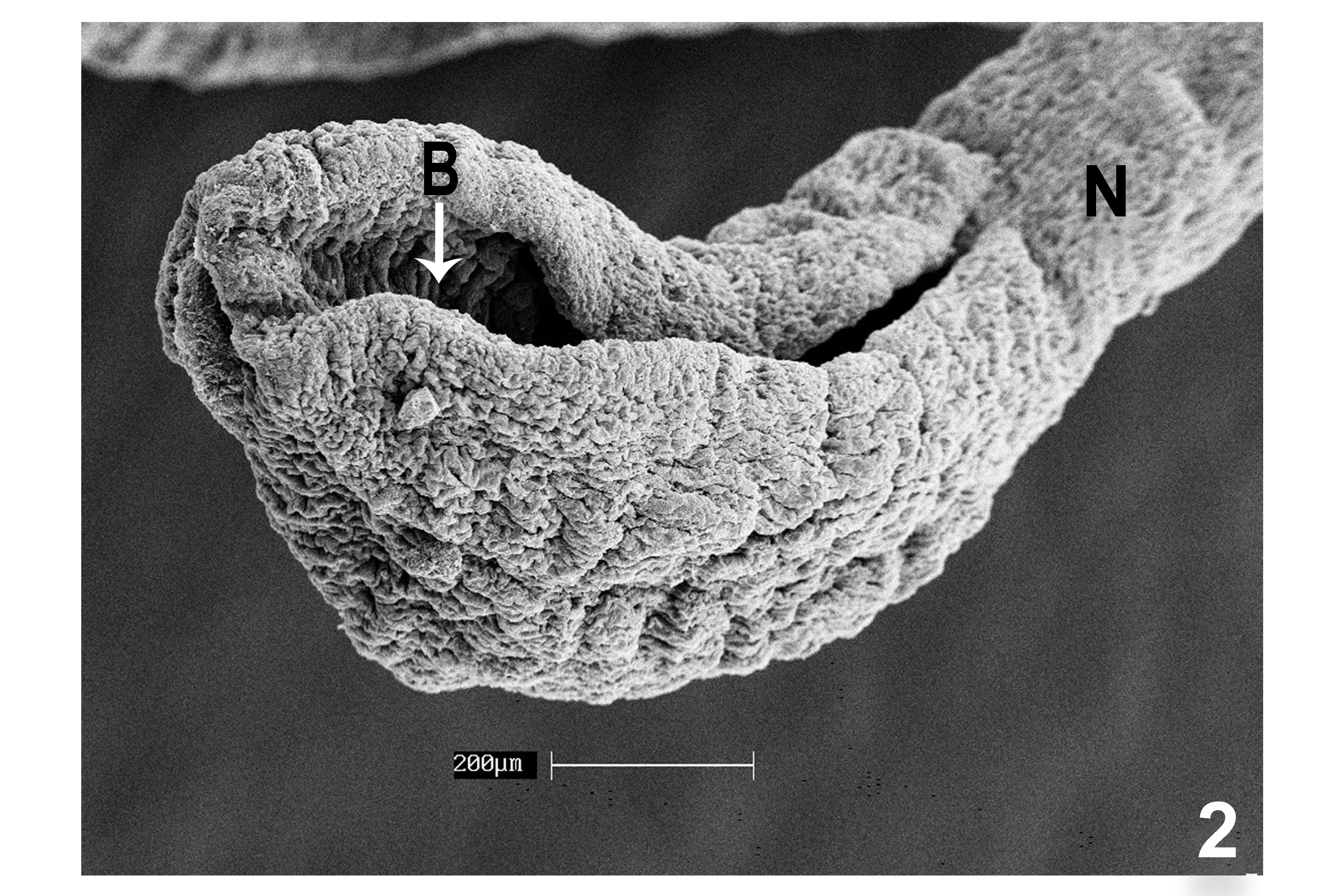 diphyllobothriasis omul