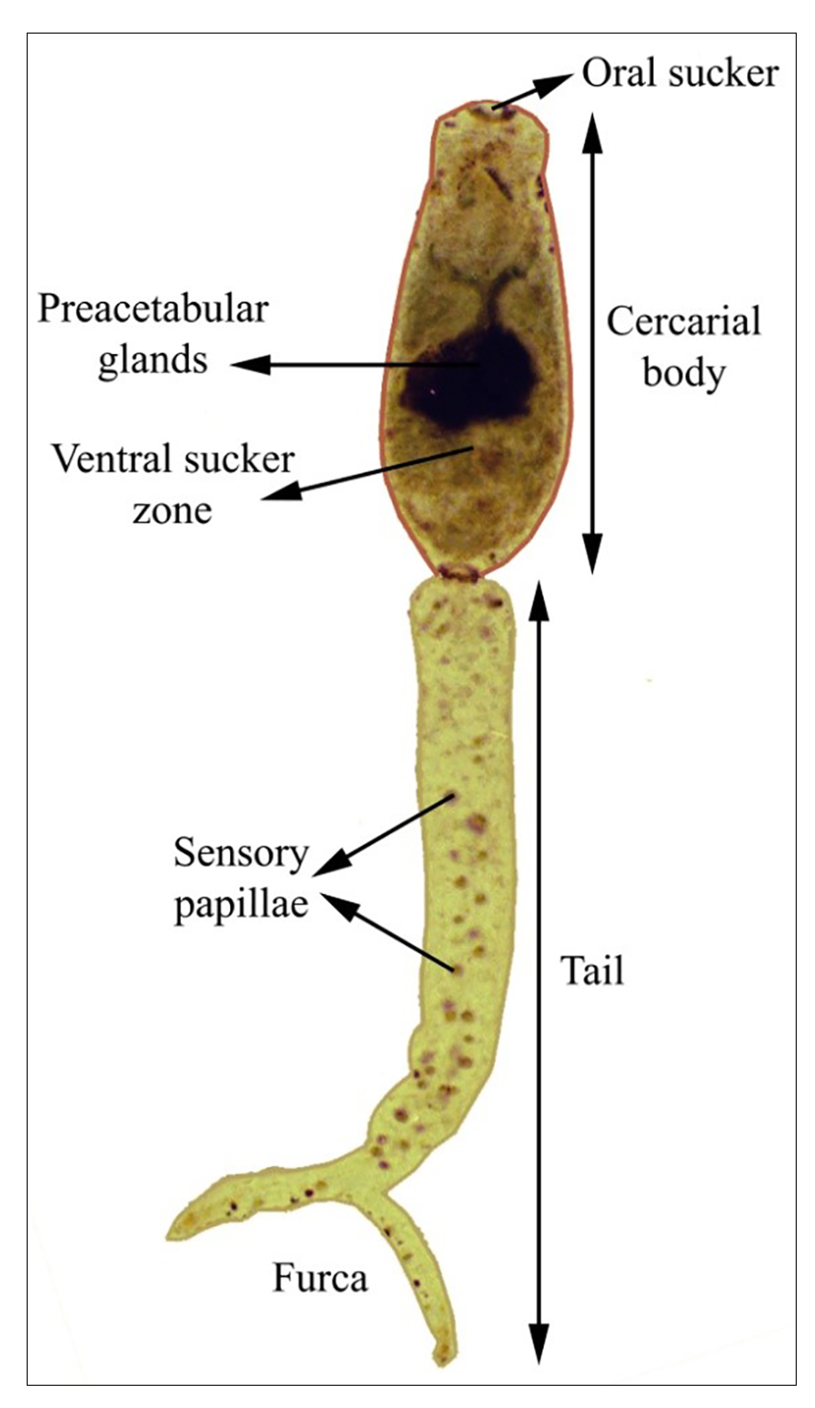 schistosomiasis nz)